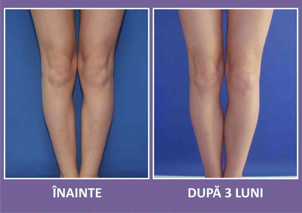 implant gambe caz 1 fata