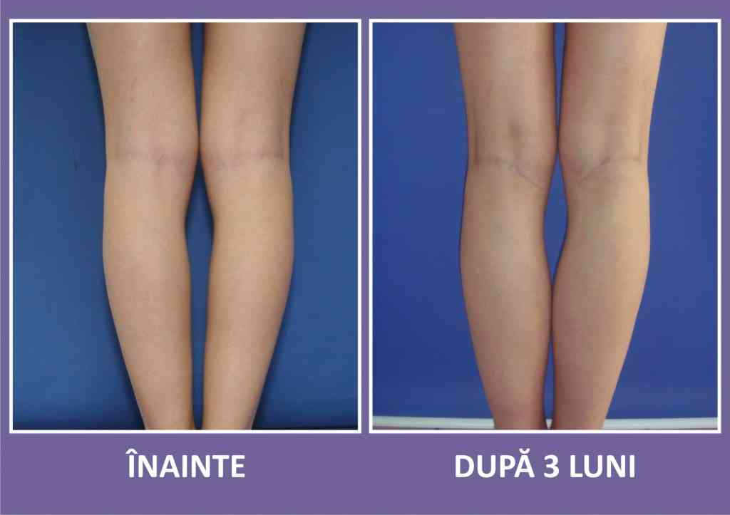 implant gambe caz 1 spate